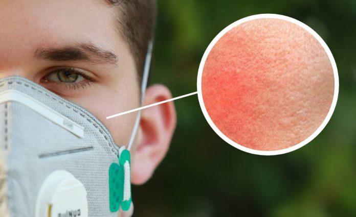 Awas Gatal-gatal Di Sekitar Pipi, Ini Antara 5 Jenis Masalah Kulit Kerana Lama Pakai Topeng Muka!