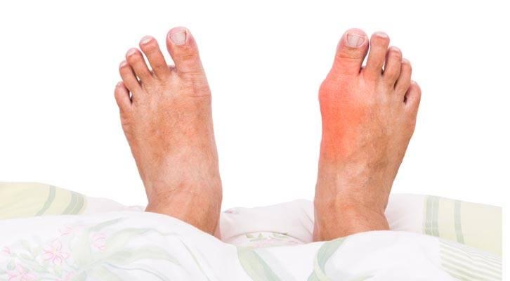 Jangan Salahkan Seafood Je, Terlebih Pengambilan Gula Juga Boleh Aktifkan Gout!