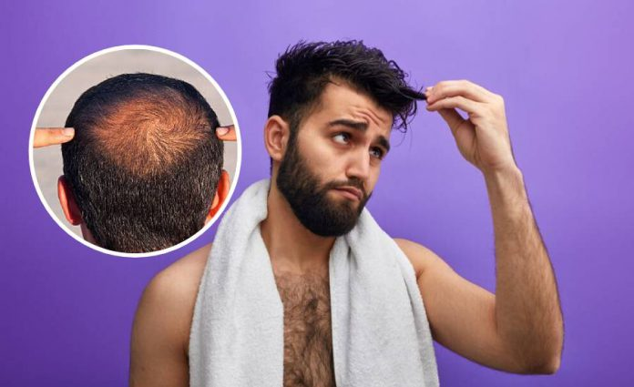 Rambut Mula Gugur? Amalkan 5 Petua Ini Untuk Elak Kepala Botak