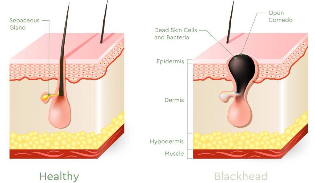 Hilangkan Jerawat Pasir & Blackhead Di Hidung Dengan Produk Mampu Milik